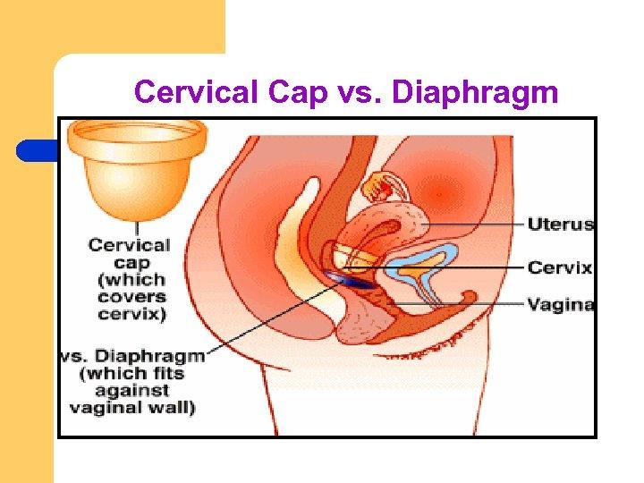 Cervical Cap vs. Diaphragm