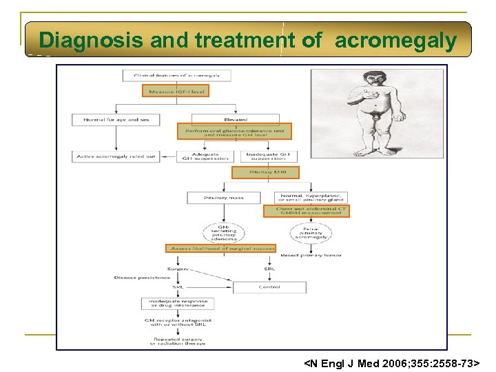 Diagnosis and treatment of acromegaly <N Engl J Med 2006; 355: 2558 -73>