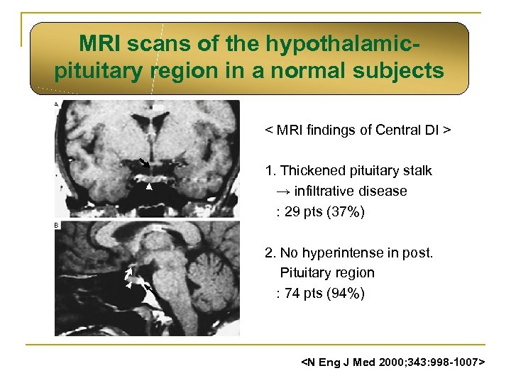 MRI scans of the hypothalamicpituitary region in a normal subjects < MRI findings of