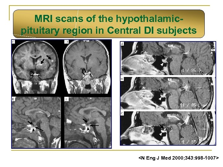 MRI scans of the hypothalamicpituitary region in Central DI subjects <N Eng J Med