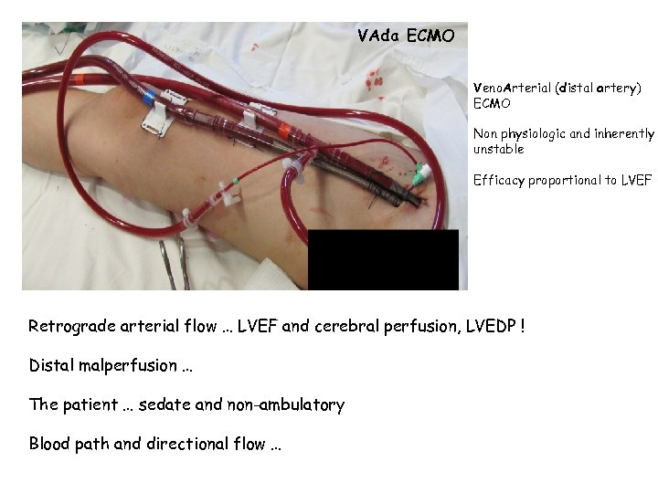 VAda ECMO Veno. Arterial (distal artery) ECMO Non physiologic and inherently unstable Efficacy proportional