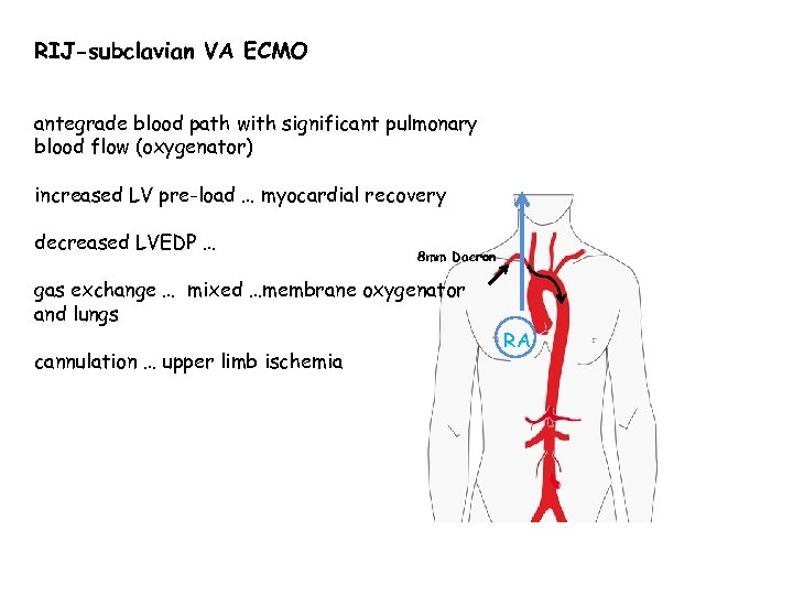 RIJ-subclavian VA ECMO antegrade blood path with significant pulmonary blood flow (oxygenator) increased LV