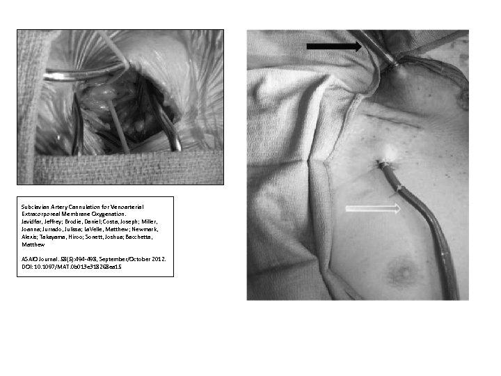 Subclavian Artery Cannulation for Venoarterial Extracorporeal Membrane Oxygenation. Javidfar, Jeffrey; Brodie, Daniel; Costa, Joseph;
