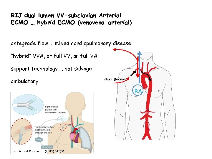RIJ dual lumen VV-subclavian Arterial ECMO … hybrid ECMO (veno-arterial) antegrade flow … mixed