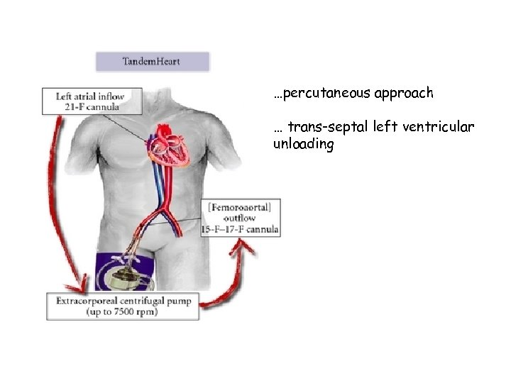 …percutaneous approach … trans-septal left ventricular unloading
