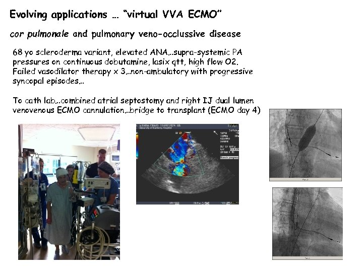 "Evolving applications … ""virtual VVA ECMO"" cor pulmonale and pulmonary veno-occlussive disease 68 yo"