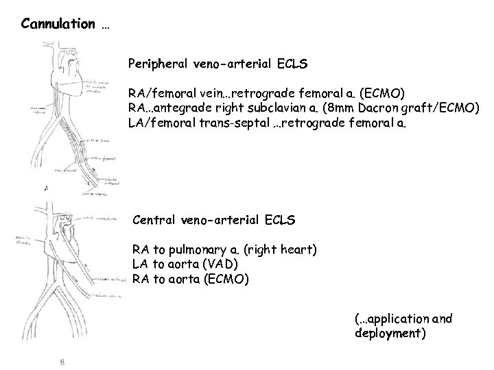 Cannulation … Peripheral veno-arterial ECLS RA/femoral vein…retrograde femoral a. (ECMO) RA…antegrade right subclavian a.
