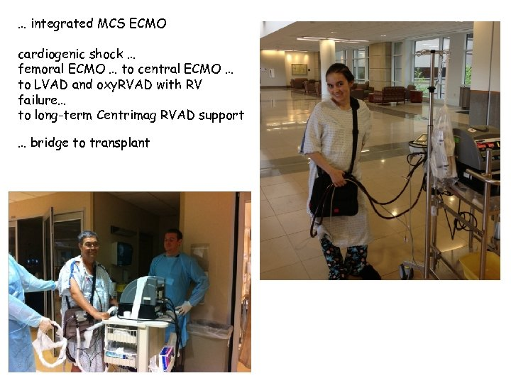 … integrated MCS ECMO cardiogenic shock … femoral ECMO … to central ECMO …