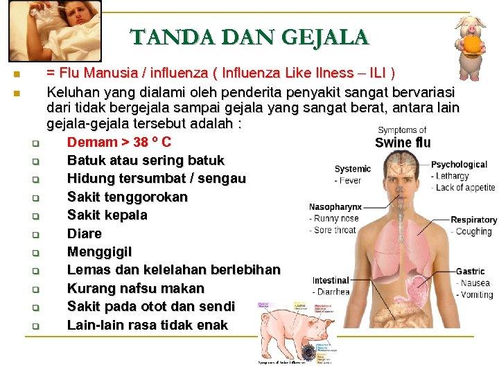 TANDA DAN GEJALA n n q q q = Flu Manusia / influenza (