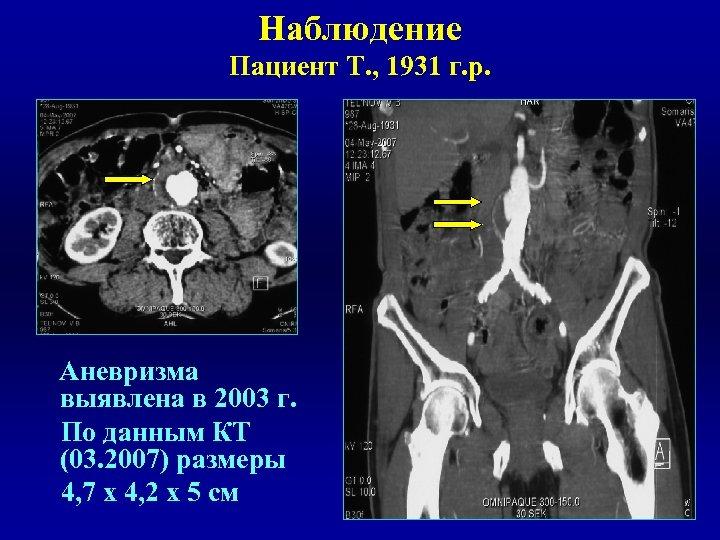 Наблюдение Пациент Т. , 1931 г. р. Аневризма выявлена в 2003 г. По данным