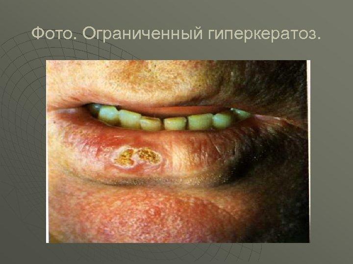 Фото. Ограниченный гиперкератоз.