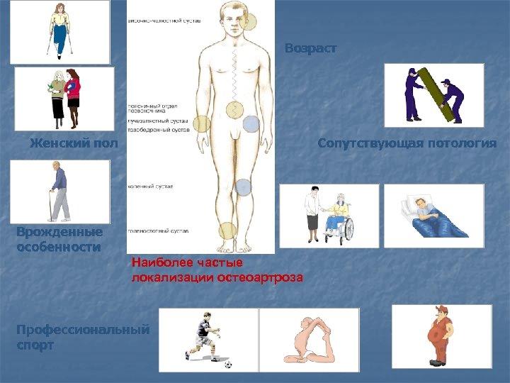 Ожирение Женский пол Сопутствующая потология Наиболее частые локализации остеоартроза Профессиональный спорт Врожденные особенности