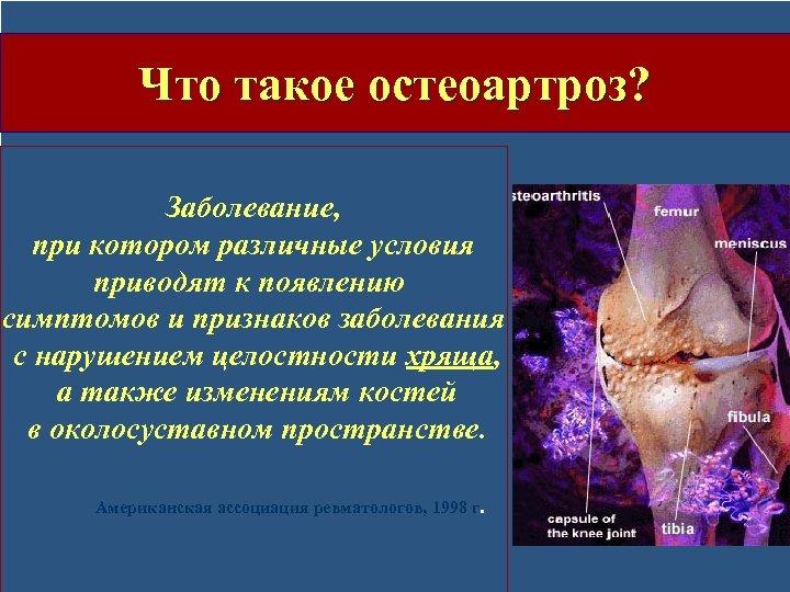 Что такое остеоартроз? Заболевание, при котором различные условия приводят к появлению симптомов и признаков