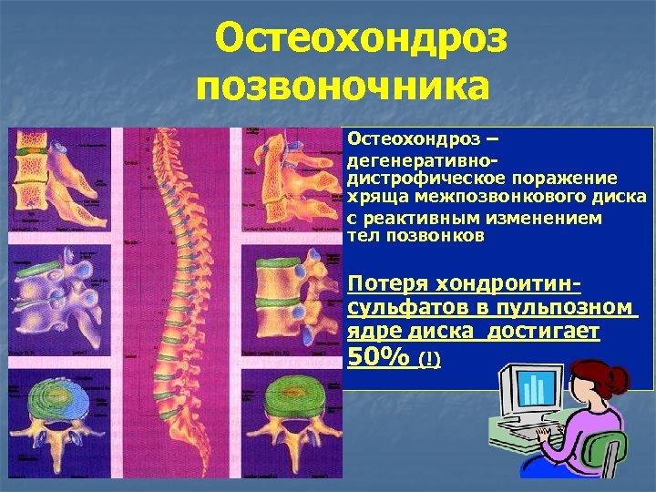 Остеохондроз позвоночника Остеохондроз – дегенеративно- дистрофическое поражение хряща межпозвонкового диска с реактивным изменением