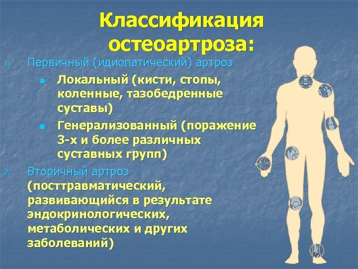 Классификация остеоартроза: 1. 2. Первичный (идиопатический) артроз n Локальный (кисти, стопы, коленные, тазобедренные суставы)