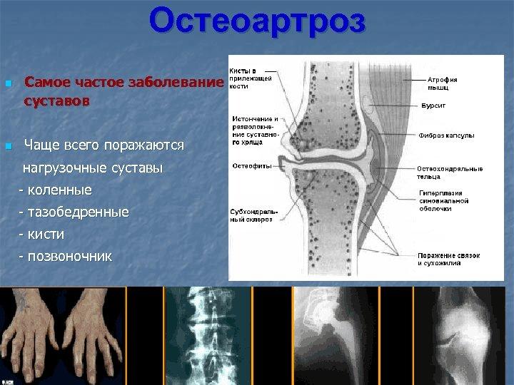 Остеоартроз n n Самое частое заболевание суставов Чаще всего поражаются нагрузочные суставы - коленные