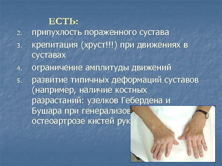 ЕСТЬ: 2. 3. 4. 5. припухлость пораженного сустава крепитация (хруст!!!) при движениях в суставах