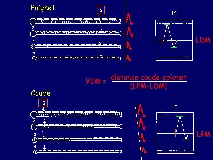 Poignet LDM VCM = Coude distance coude-poignet (LPM-LDM) LPM