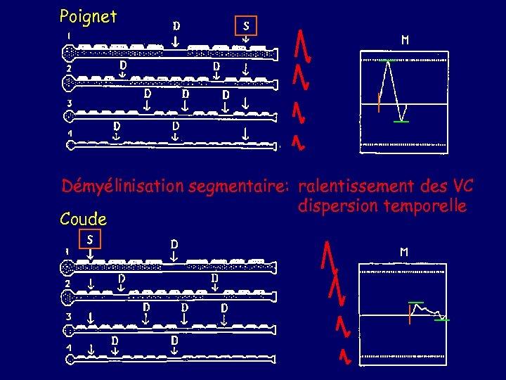 Poignet Démyélinisation segmentaire: ralentissement des VC dispersion temporelle Coude