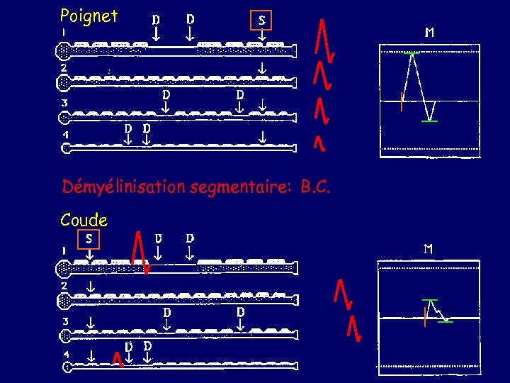 Poignet Démyélinisation segmentaire: B. C. Coude