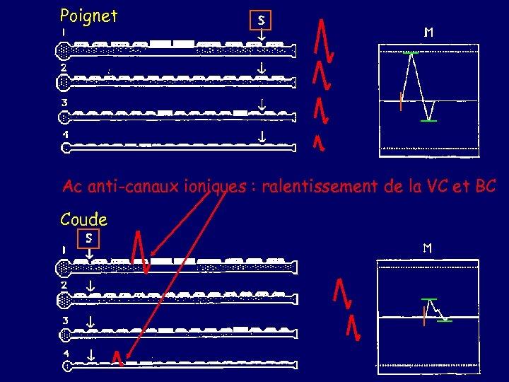 Poignet Ac anti-canaux ioniques : ralentissement de la VC et BC Coude