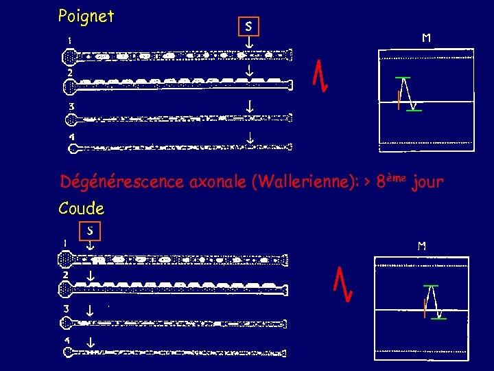 Poignet Dégénérescence axonale (Wallerienne): > 8ème jour Coude