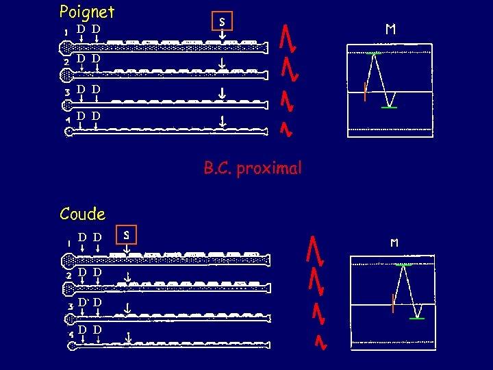 Poignet D D D D B. C. proximal Coude D D D D