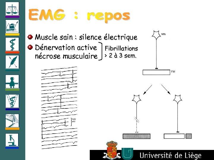 Muscle sain : silence électrique Dénervation active Fibrillations nécrose musculaire > 2 à 3