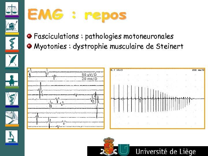 Fasciculations : pathologies motoneuronales Myotonies : dystrophie musculaire de Steinert 50 µV/D 20 ms/D