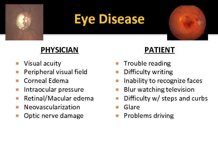 Eye Disease PHYSICIAN Visual acuity Peripheral visual field Corneal Edema Intraocular pressure Retinal/Macular edema