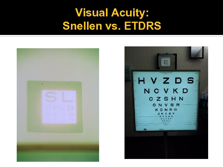 Visual Acuity: Snellen vs. ETDRS