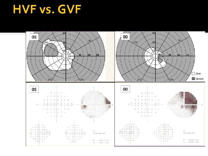HVF vs. GVF