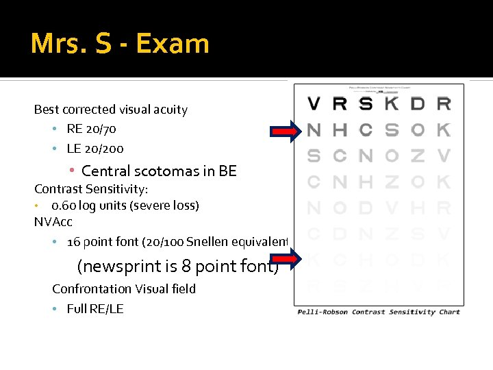 Mrs. S - Exam Best corrected visual acuity • RE 20/70 • LE 20/200