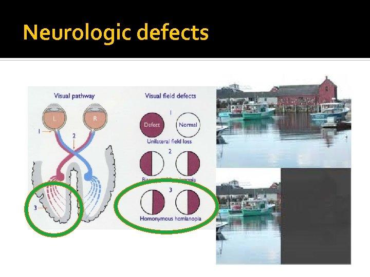 Neurologic defects