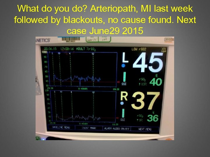 What do you do? Arteriopath, MI last week followed by blackouts, no cause found.