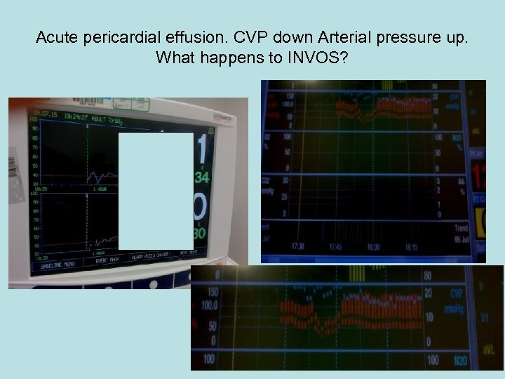 Acute pericardial effusion. CVP down Arterial pressure up. What happens to INVOS?