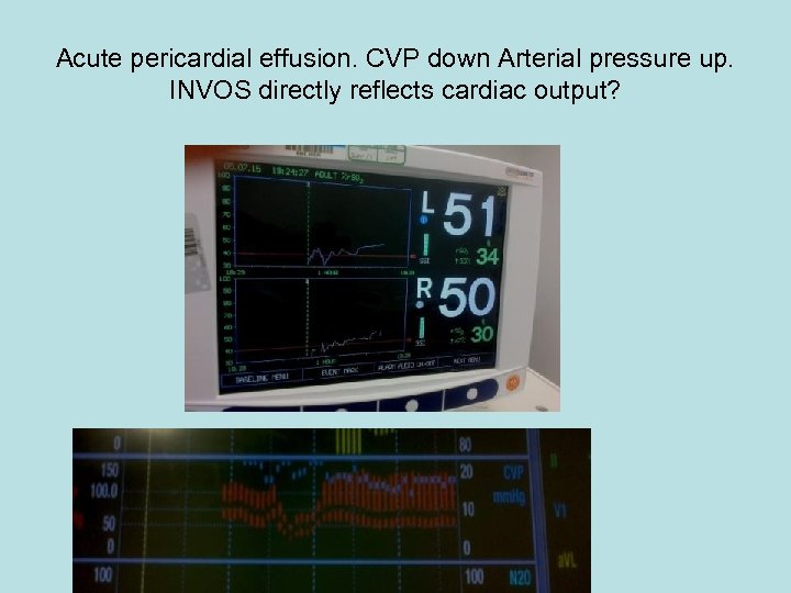 Acute pericardial effusion. CVP down Arterial pressure up. INVOS directly reflects cardiac output?