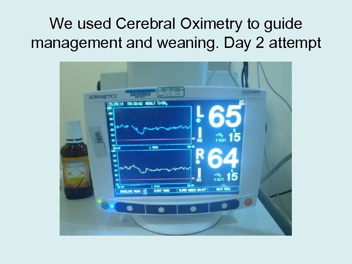 We used Cerebral Oximetry to guide management and weaning. Day 2 attempt