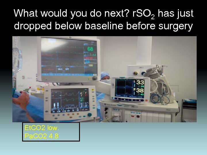 What would you do next? r. SO 2 has just dropped below baseline before