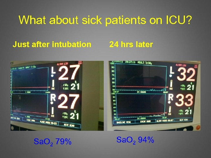 What about sick patients on ICU? Just after intubation Sa. O 2 79% 24