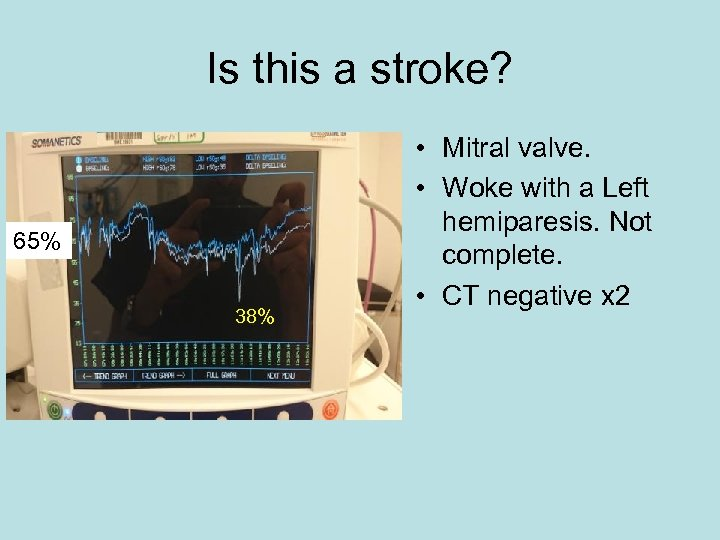 Is this a stroke? 65% 38% • Mitral valve. • Woke with a Left
