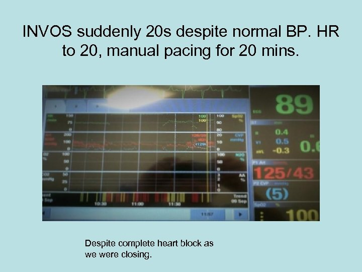 INVOS suddenly 20 s despite normal BP. HR to 20, manual pacing for 20