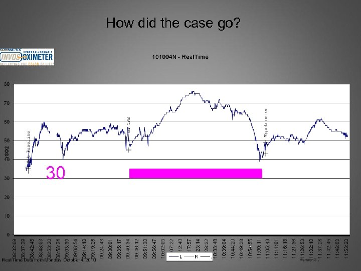 How did the case go? 30