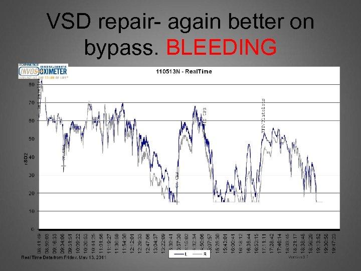 VSD repair- again better on bypass. BLEEDING