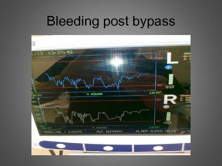 Bleeding post bypass