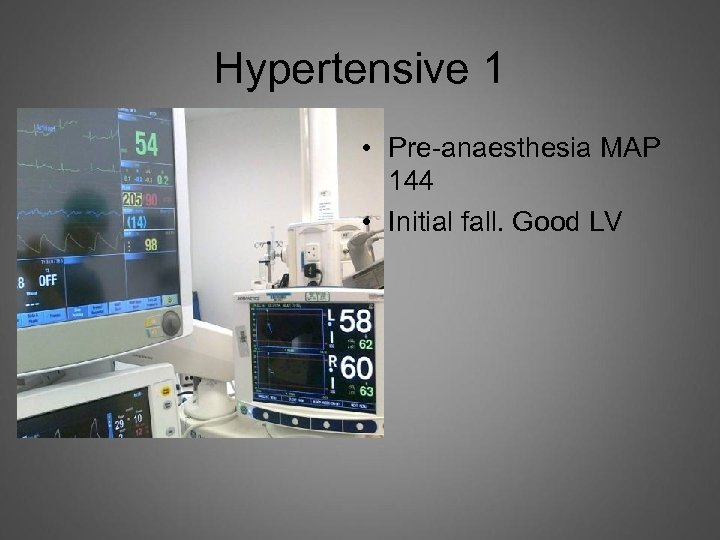 Hypertensive 1 • Pre-anaesthesia MAP 144 • Initial fall. Good LV