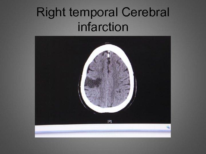 Right temporal Cerebral infarction