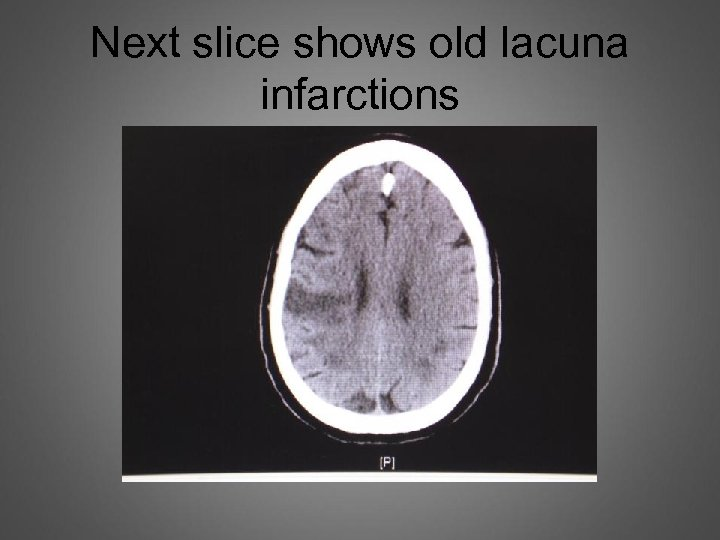 Next slice shows old lacuna infarctions