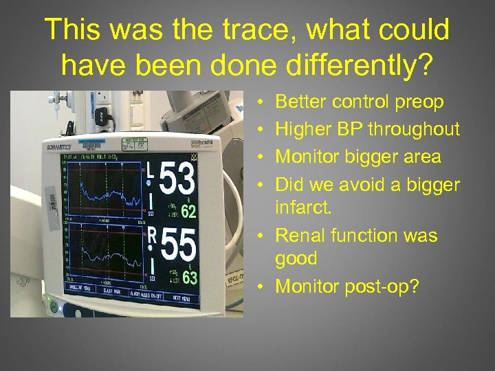 This was the trace, what could have been done differently? • • Better control