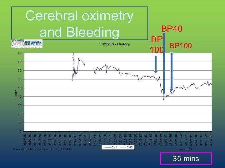 Cerebral oximetry and Bleeding BP 40 BP BP 100 35 mins